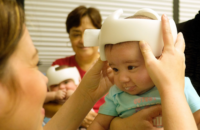 Clinician Theresa Suarez fits the orthotic helmet on baby Sofia Aly. Once the baby is accustomed to it, she will wear it 23 hours a day.