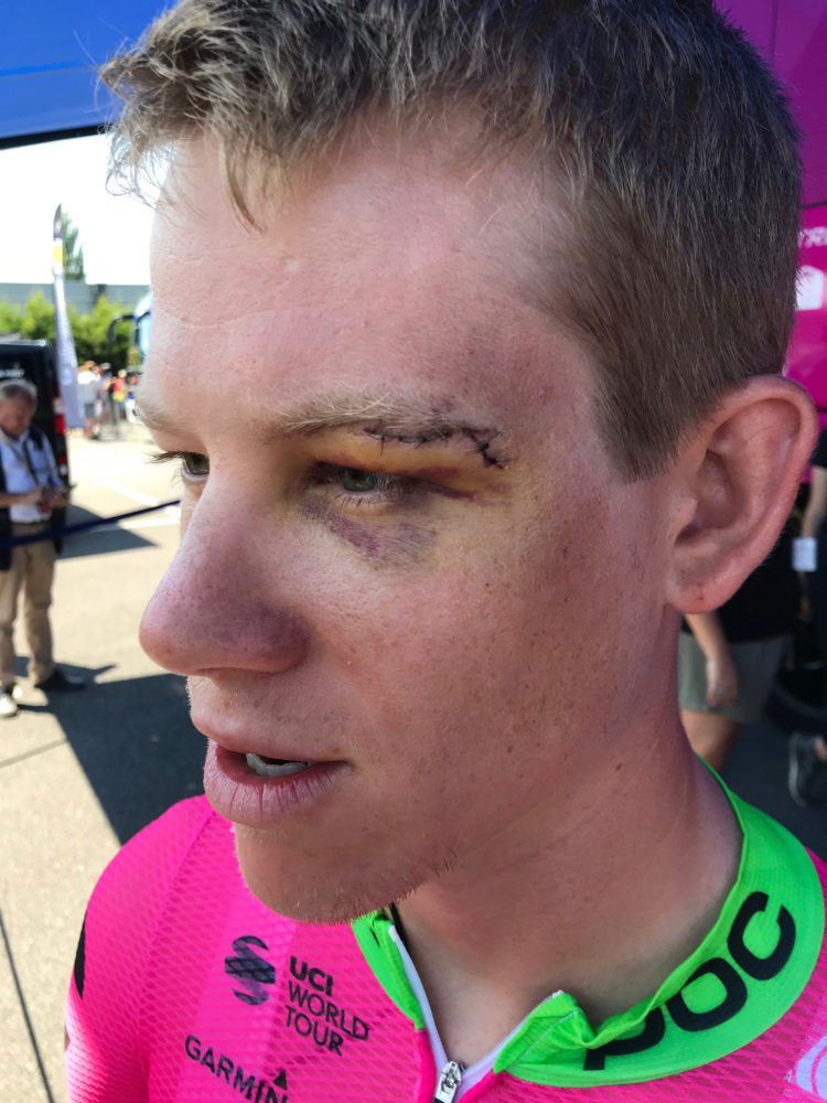 In this July 10, 2018 image, Lawson Craddock of the U.S. talks to reporters in La Baule, France, prior to the start of the fourth stage of the Tour de France cycling race. After breaking his shoulder and bloodying his face in an unfortunate crash during the first stage of the Tour de France, American rider Lawson Craddock has soldiered through six more grueling days of the world's biggest bike race.